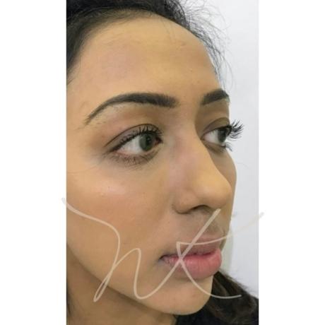 3D Facial Contouring After Natali Kelly