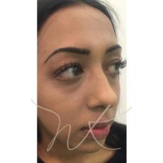3D Facial Contouring Before Natali Kelly